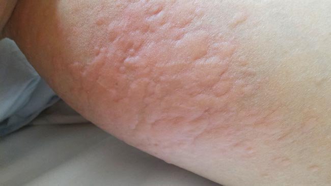 蕁麻疹(イメージ)