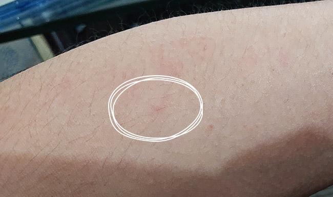蕁麻疹の種
