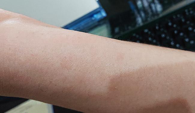 ジンマートで蕁麻疹が収まった