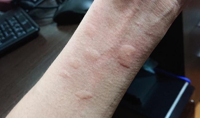 蕁麻疹の膨疹